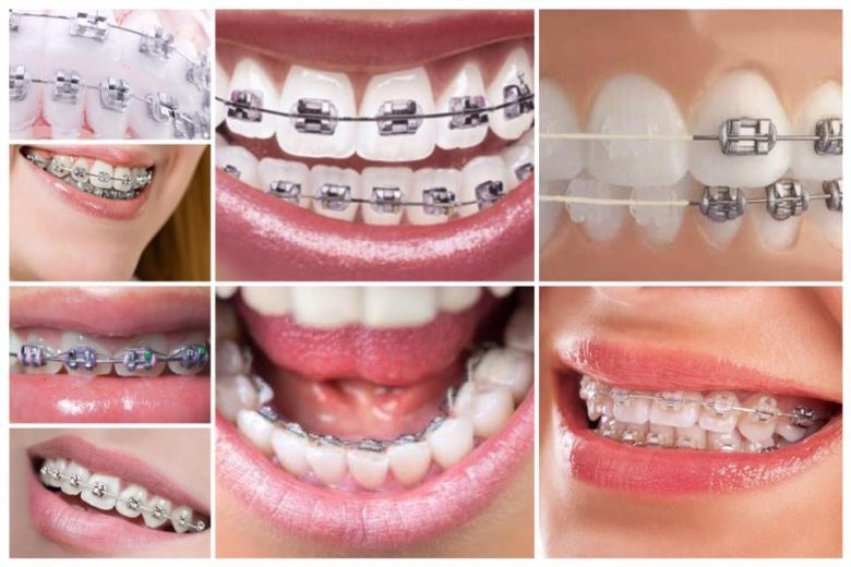 Aparate dentare pentru o dantura perfect aliniata si un zambet frumos